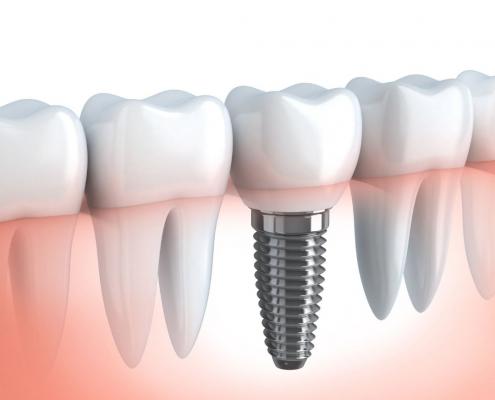 O que são implantes dentários e para que servem